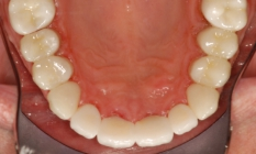 Damage Restored With Beautiful Porcelain Crowns