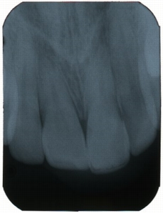 Sample of a Periapical X-Ray