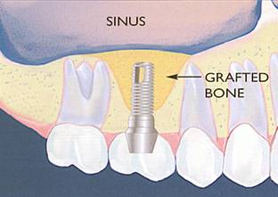 Sinus Lift Bone Graft After