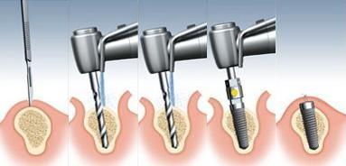 Những kinh nghiệm xương máu khi làm răng implant