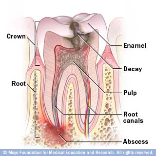 Root Canal Ask Dr G