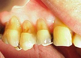 Toothbrush Abrasion Effects